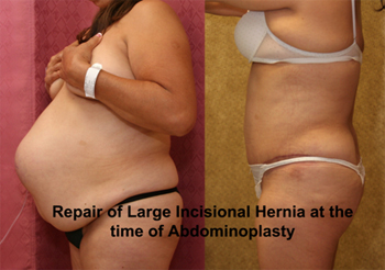 Does hernia surgery cause sexual impotence
