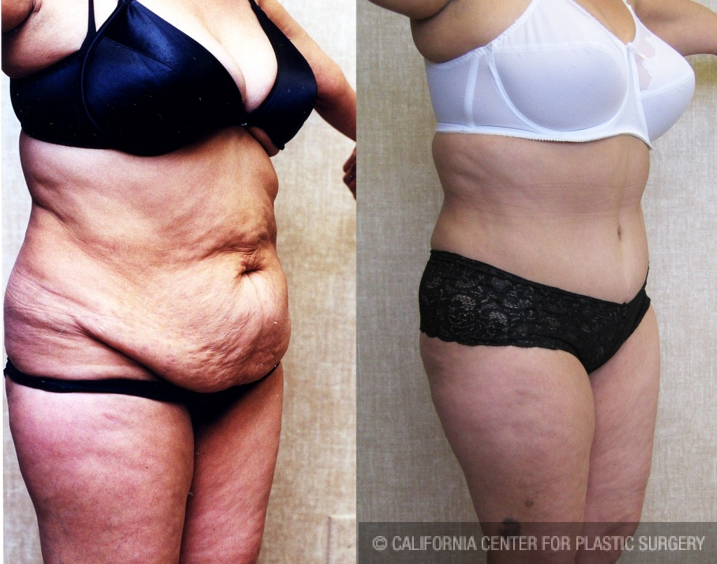 Tummy Tuck Medium Size Before & After Patient #5769