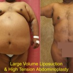 Male Liposuction Abdomen Before & After Patient #5617