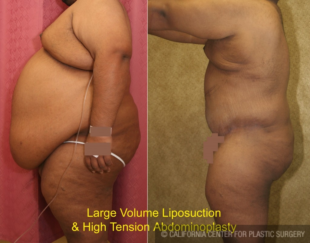 Male Tummy Tuck Before & After Patient #6031
