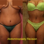 Tummy Tuck Medium Size Before & After Patient #5760