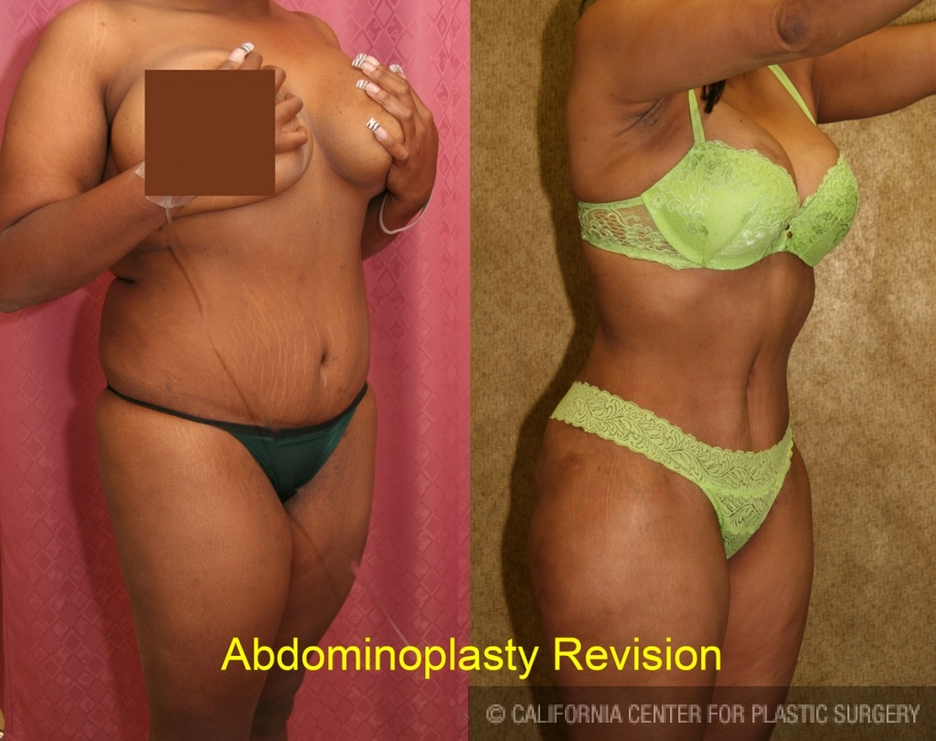 African American Tummy Tuck Before & After Patient #5919