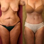 Tummy Tuck Medium Size Before & After Patient #5821