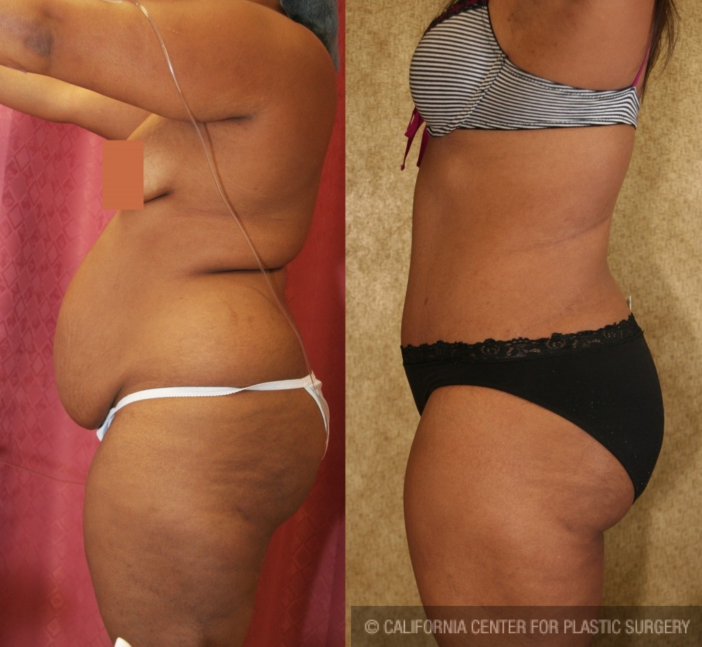 African American Tummy Tuck Before & After Patient #5973