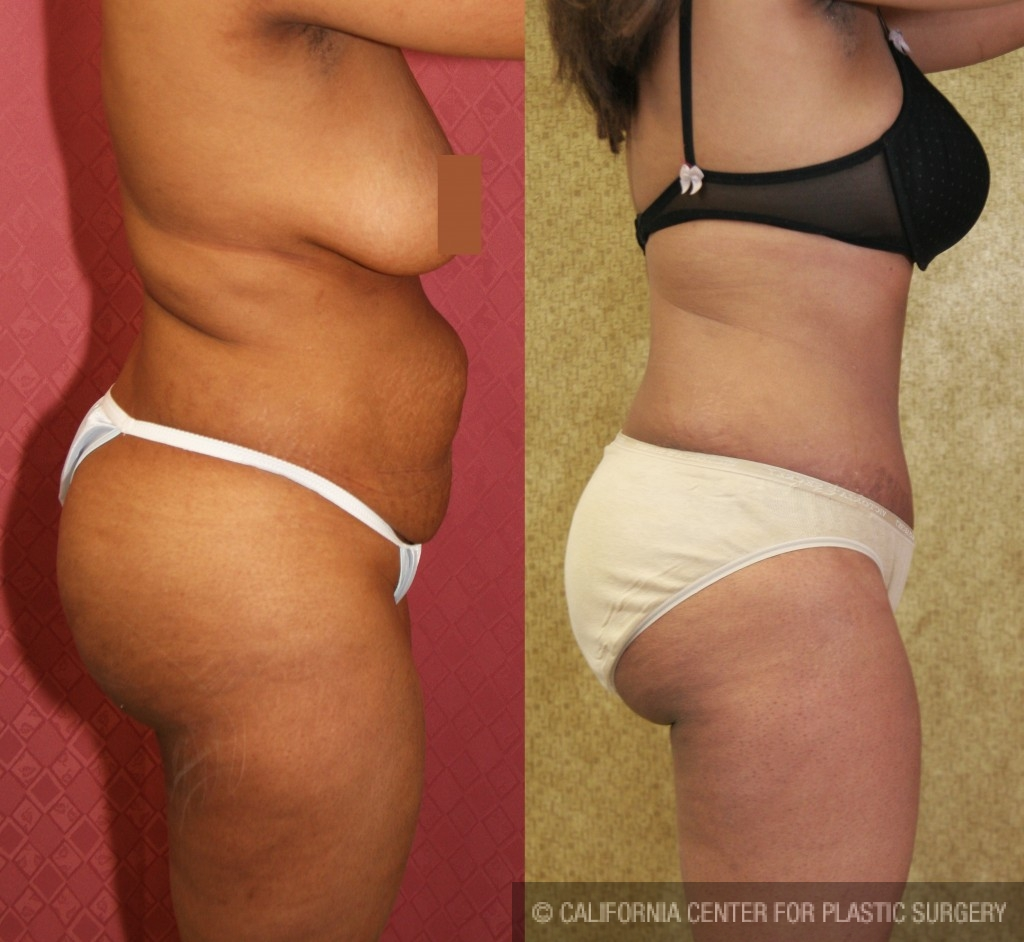 African American Tummy Tuck Before & After Patient #5949