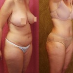 Tummy Tuck Medium Size Before & After Patient #5859