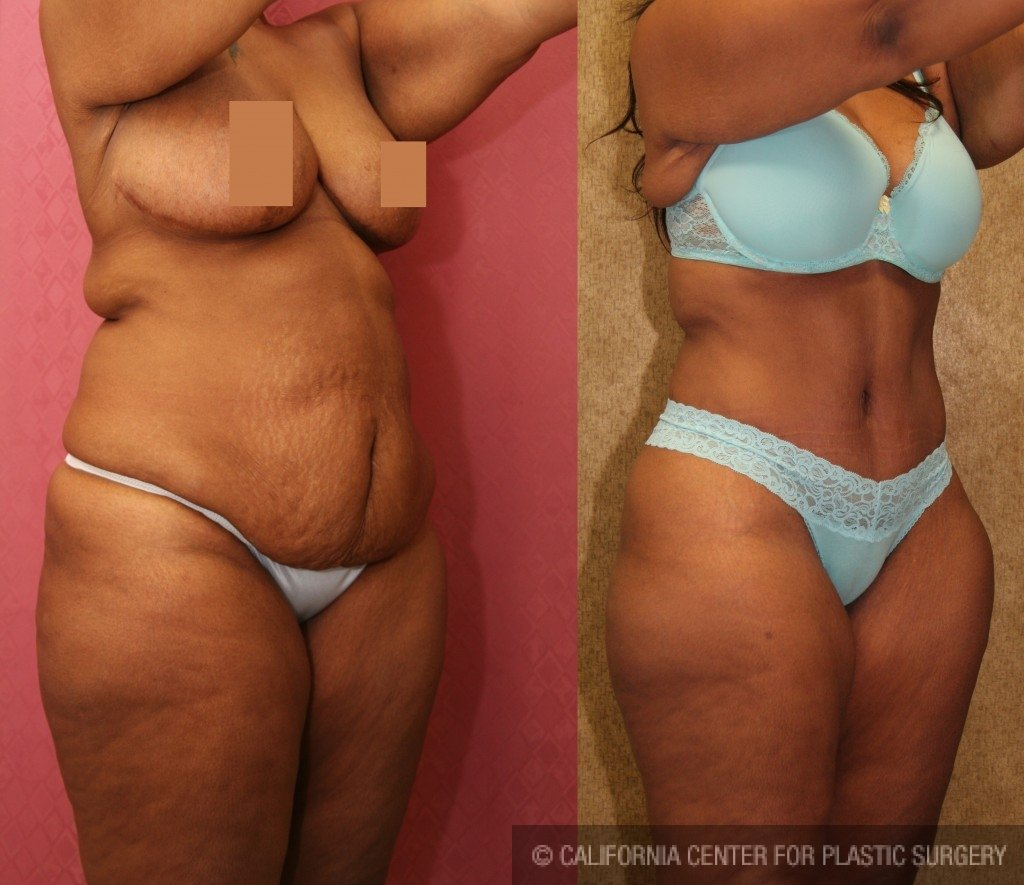 African American Tummy Tuck Before & After Patient #5924