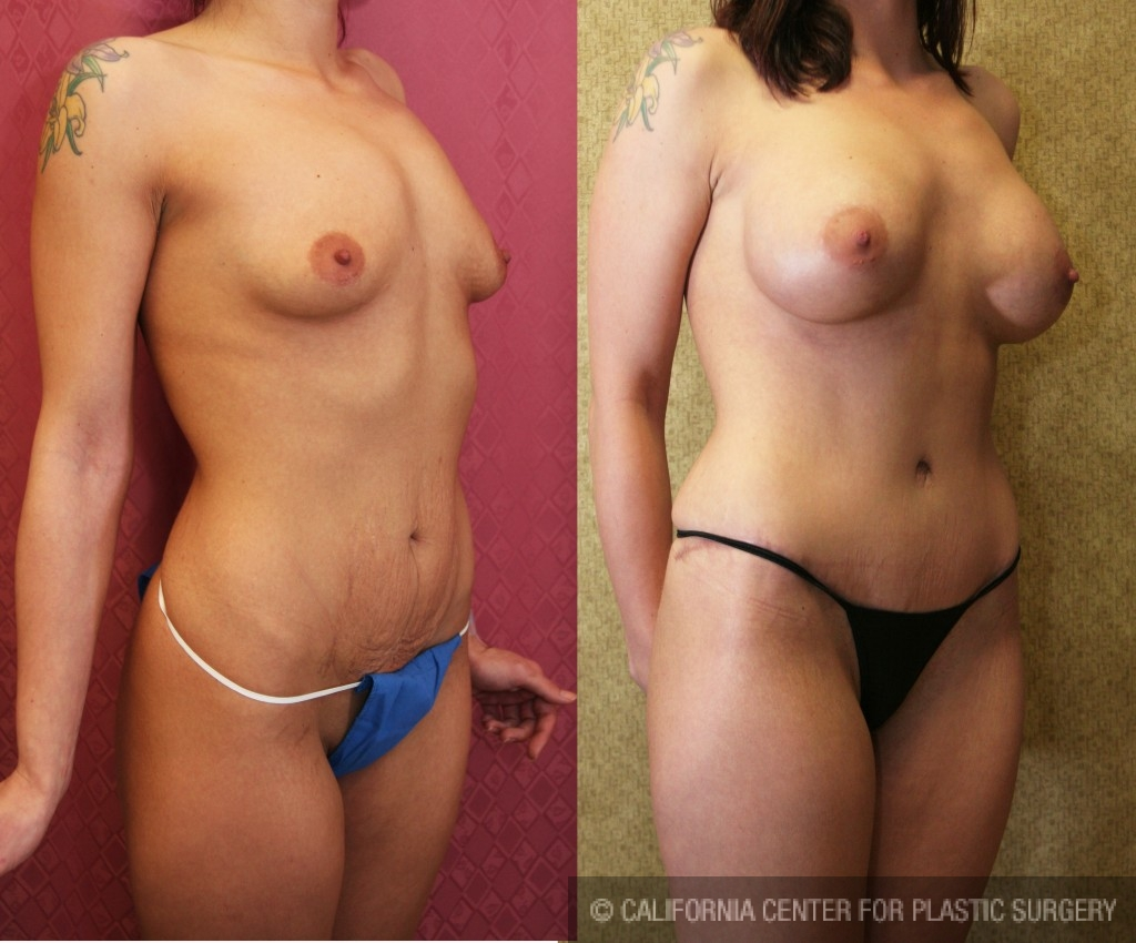 Tummy Tuck Small Size Before & After Patient #5742
