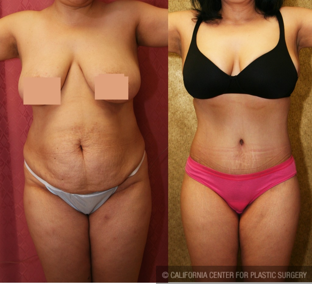 Tummy Tuck Medium Size Before & After Patient #5777