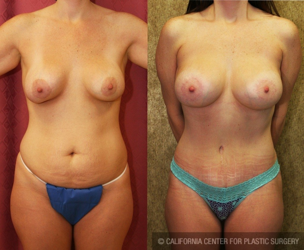 Mommy Makeover Before & After Patient #6005