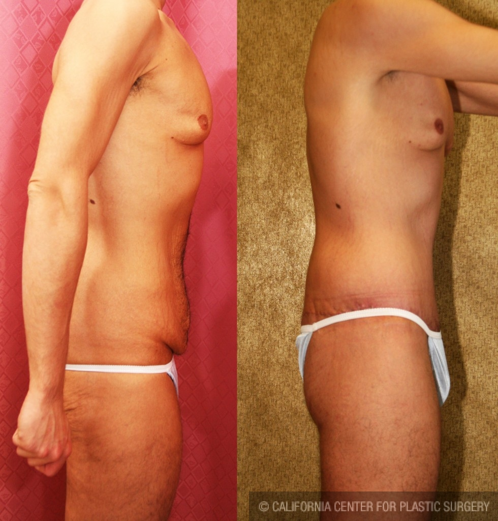 Male Tummy Tuck Before & After Patient #6019