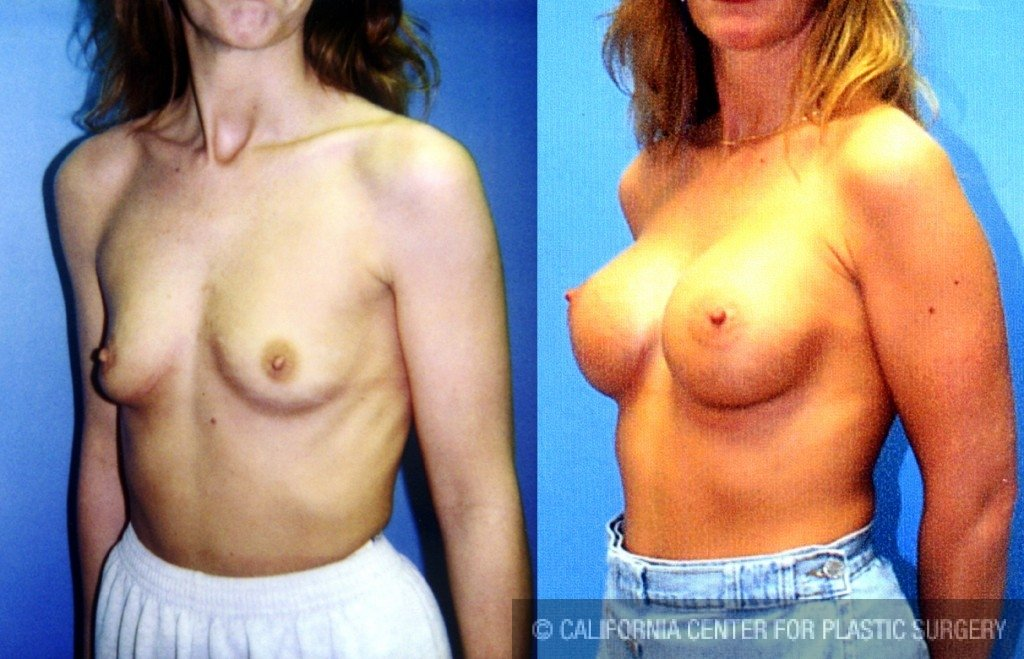 Breast Augmentation Before & After Patient #6415