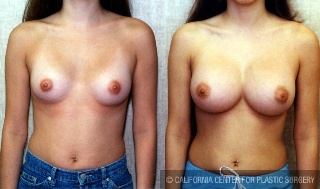 Breast Augmentation Before & After Patient #6171