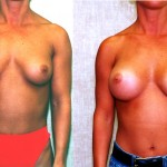 Breast Augmentation Before & After Patient #6271