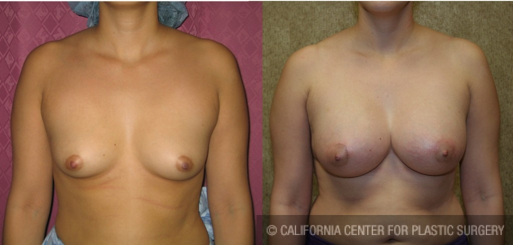 Breast Augmentation Before & After Patient #6425