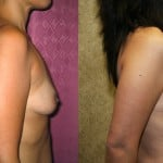 Breast Augmentation Before & After Patient #6256