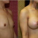 Breast Augmentation Before & After Patient #6343