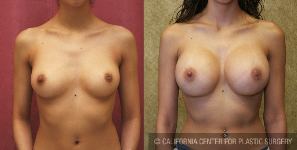 Breast Augmentation Before & After Patient #6293