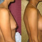 Breast Augmentation Before & After Patient #6376