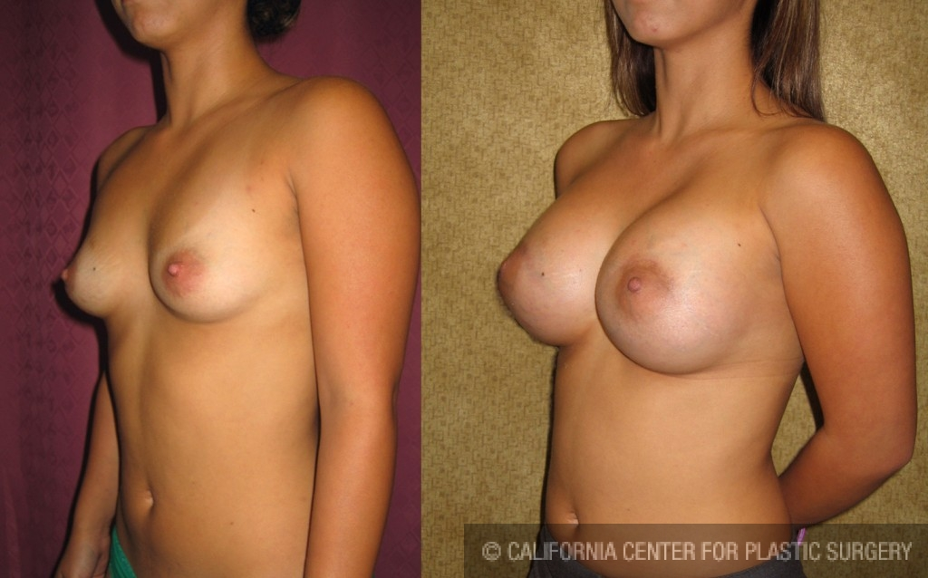 Breast Augmentation Before & After Patient #6276
