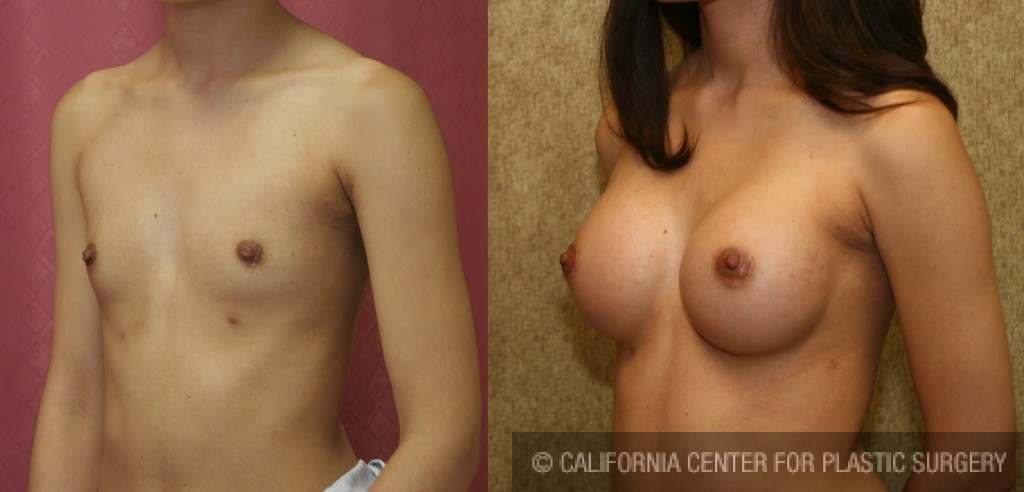 Breast Augmentation Before & After Patient #6301