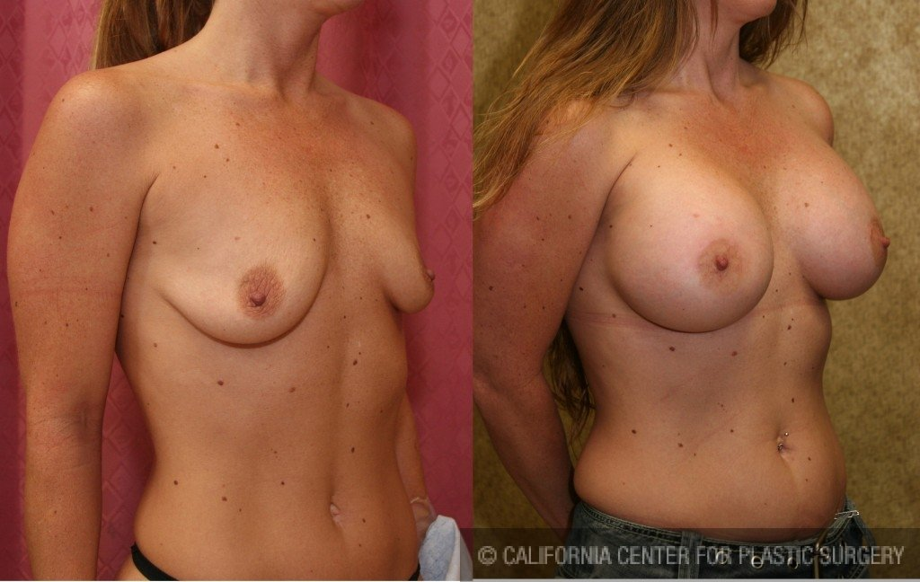 Breast Augmentation Before & After Patient #6318