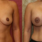 Breast Augmentation Before & After Patient #6448