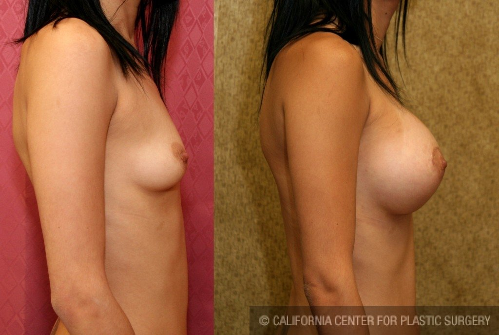 Breast Augmentation Before & After Patient #6308