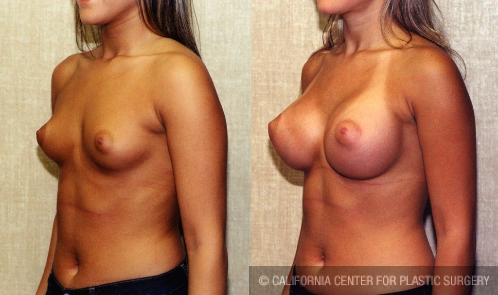 Breast Augmentation Before & After Patient #6285
