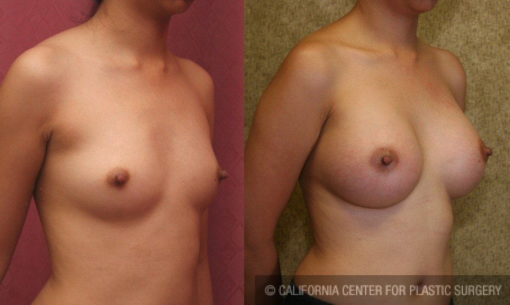 Breast Augmentation Before & After Patient #6395