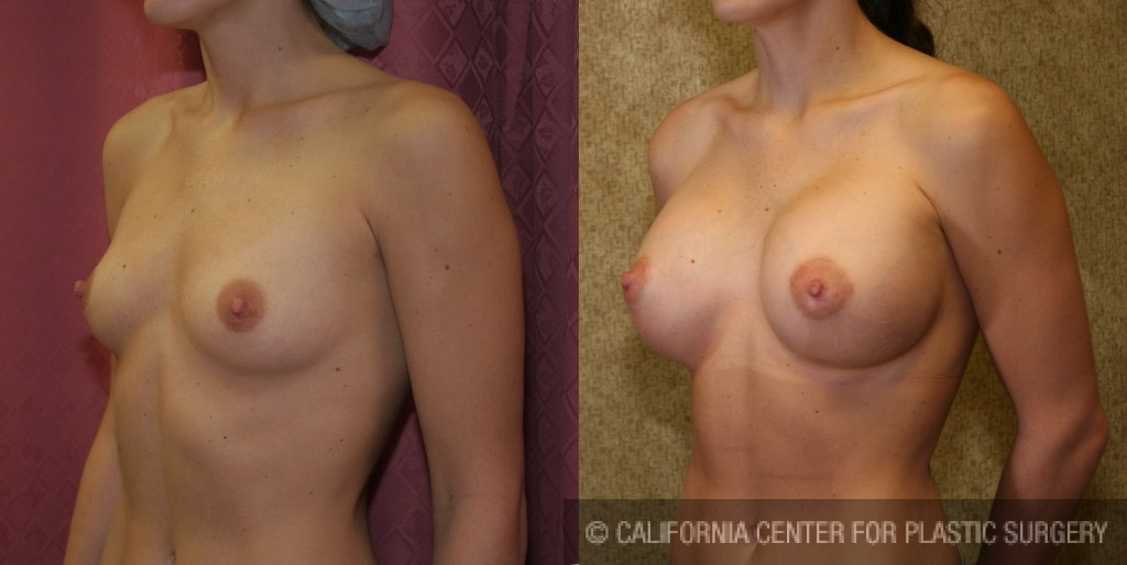 Breast Augmentation Before & After Patient #6213