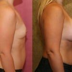 Breast Augmentation Before & After Patient #6351