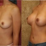 Breast Augmentation Before & After Patient #6359