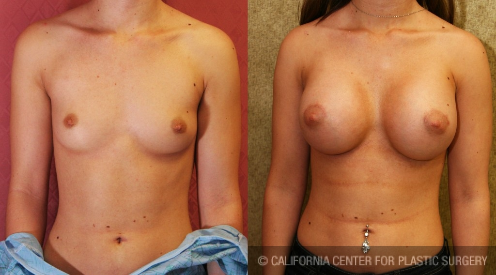 Breast Augmentation Before & After Patient #6455