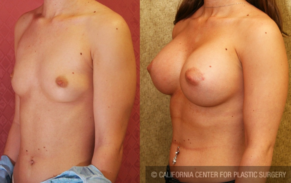 Breast Augmentation Before & After Patient #6219