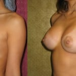 Breast Augmentation Before & After Patient #6230