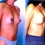 Breast Augmentation Before & After Patient #6367