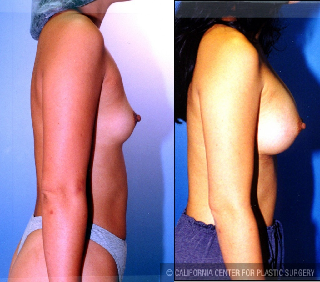 e017d870f3 Patient  6367 Breast Augmentation Before and After Photos Los ...