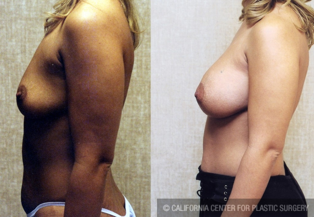Breast Augmentation Before & After Patient #6335