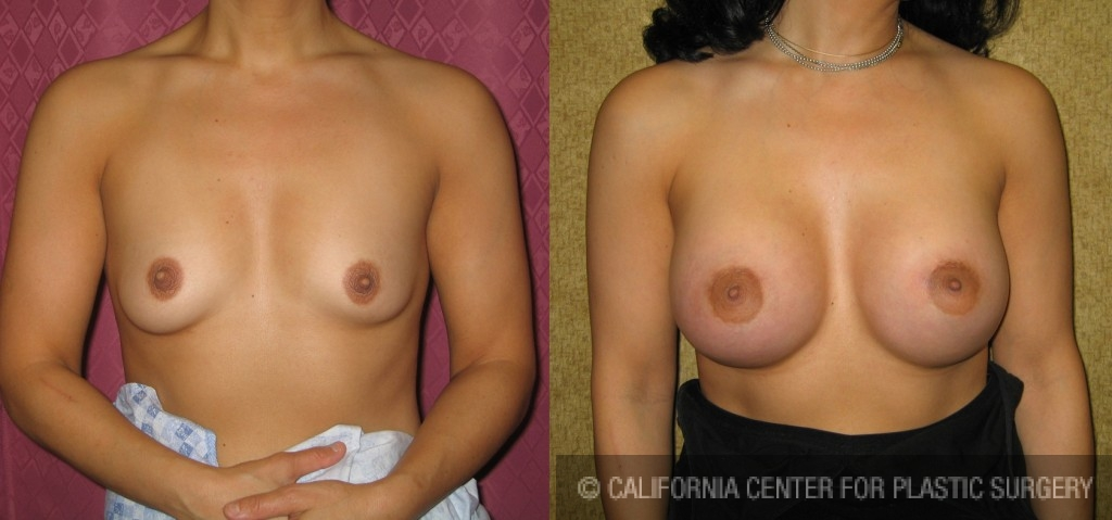 Breast Augmentation Before & After Patient #6387