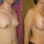Breast Augmentation Before & After Patient #6438