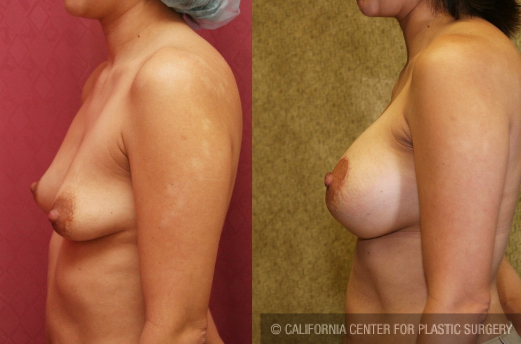Moderate Breast Lift Before & After Patient #6608