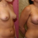 Breast Asymmetry Before & After Patient #6941