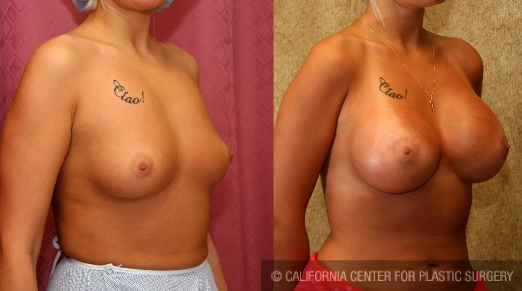 Breast Augmentation Before & After Patient #6242