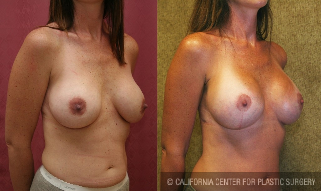 Breast Augmentation (Revision) Before & After Patient #6551