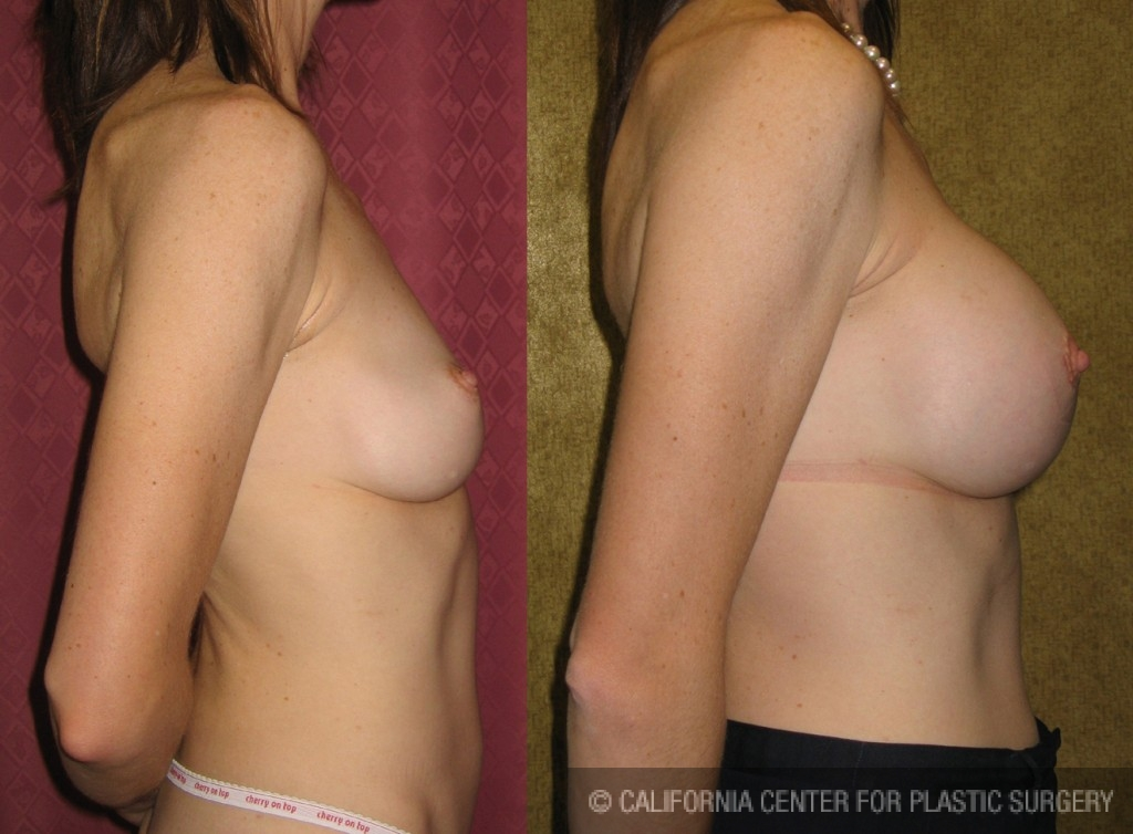 Breast Augmentation (Revision) Before & After Patient #6478
