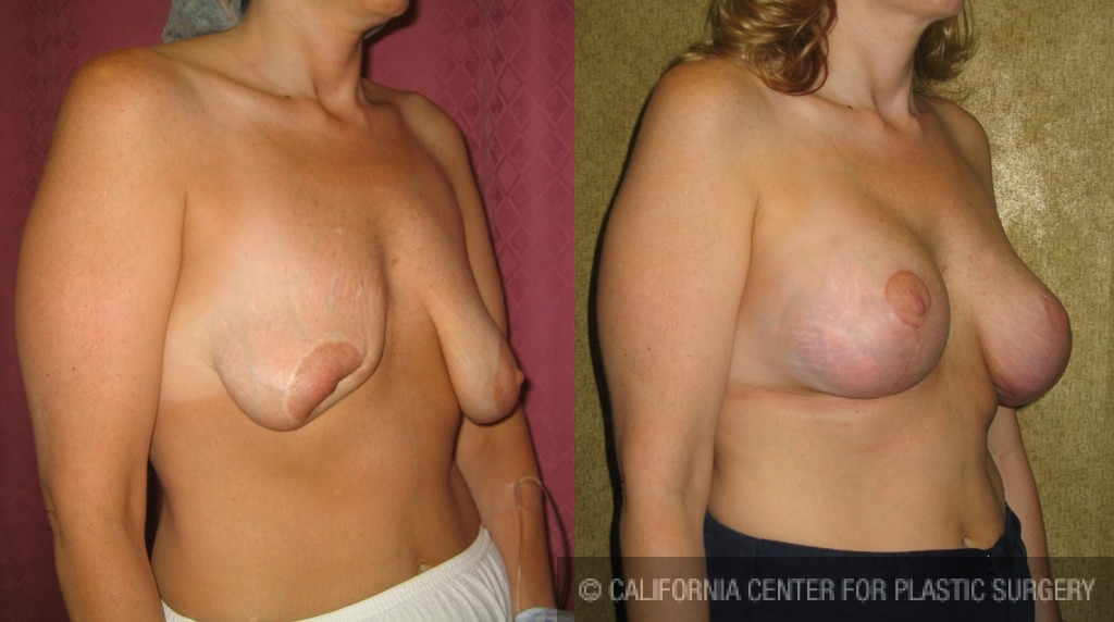 Breast Augmentation (Revision) Before & After Patient #6490