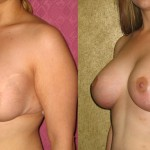 Breast Augmentation (Revision) Before & After Patient #6493