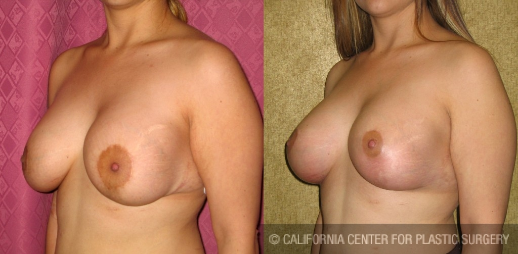 Breast Augmentation (Revision) Before & After Patient #6497