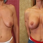 Breast Augmentation (Revision) Before & After Patient #6501